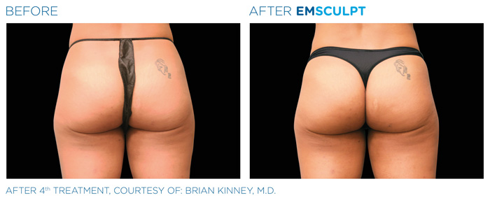 emsculpt female buttocks